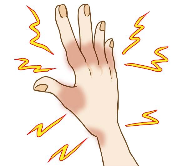 小指 しびれ 脳 梗塞 左手